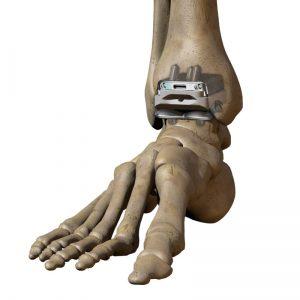 Wright-TAR-bone-model