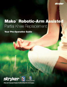 Mako Robotic Arm Assisted Partial Knee Replacement Brochure